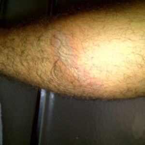 2nd degree burn on my leg from the fourwheeler. Changed into shorts and did