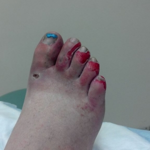 Torn achilles is the least of my worrrries now :( ohhh the pain people!